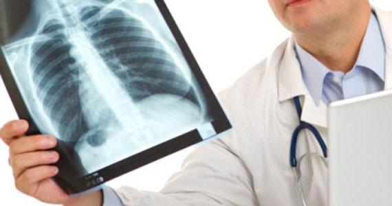 Η μάχη της ακτινογραφίας! Κόντρες γιατρών-Διαγνωστικών Κέντρων για το πλαφόν