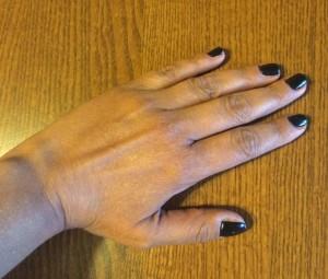 μουδιασμένα χέρια