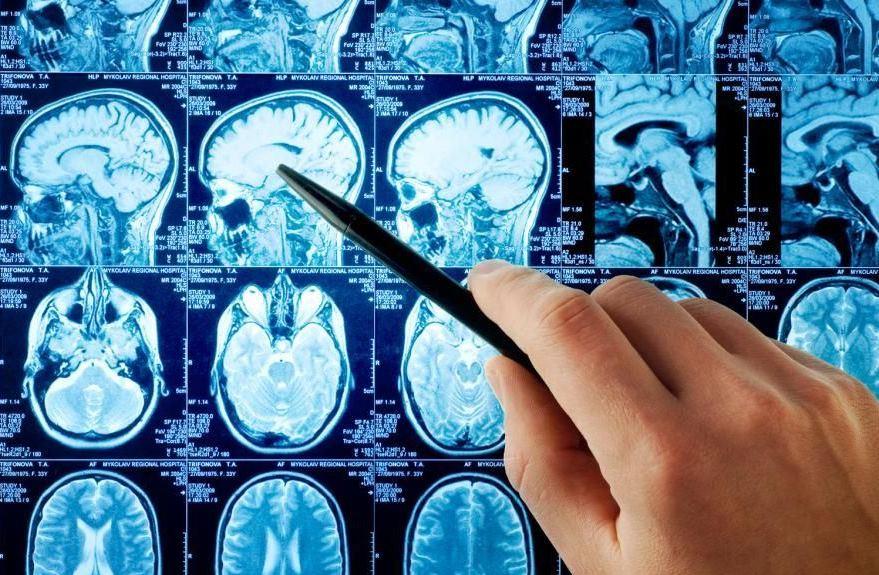 Όγκοι εγκεφάλου: Όλες οι σύγχρονες θεραπείες!