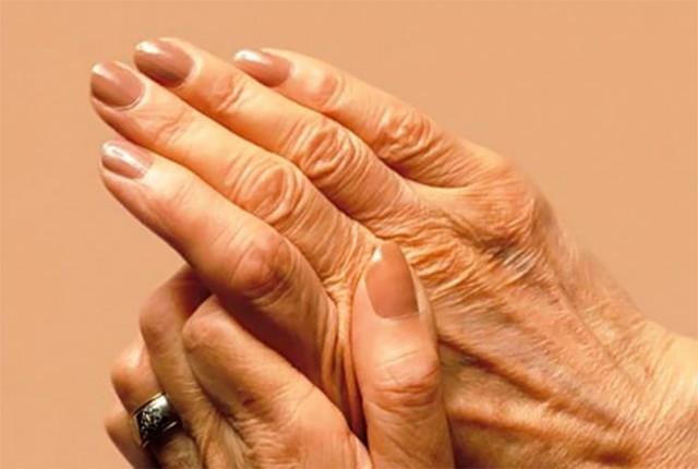 12η Οκτωβρίου Παγκόσμια Ημέρα Αρθρίτιδας