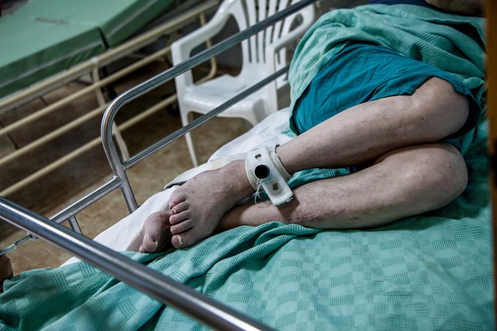 Απίστευτη τραγωδία στο Δαφνί: 3 νεκροί δεμένοι στα κρεβάτια τους και 2 διασωληνωμένοι από πυρκαγιά! Τι ψάχνουν οι αρχές