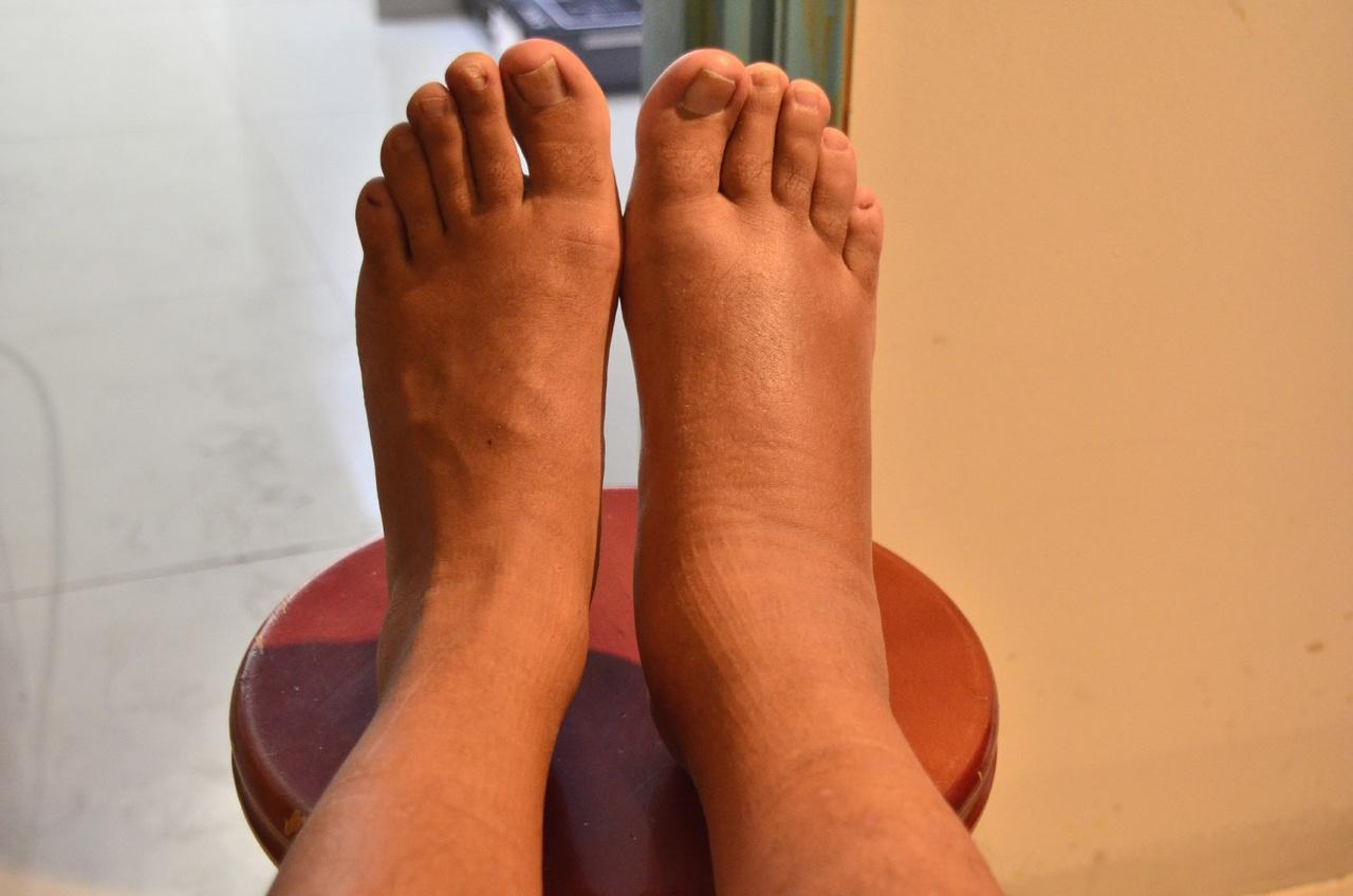 Ρευματικοί πόνοι: Δείτε πως θα ανακουφιστείτε εναλλακτικά