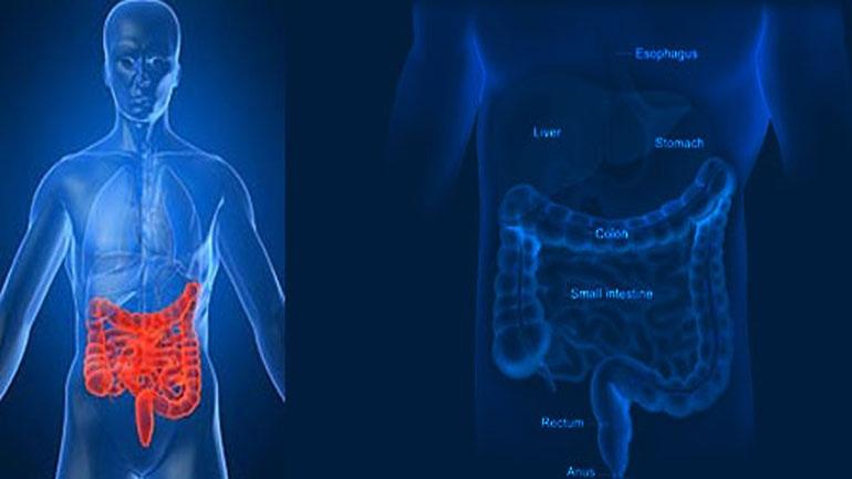 Καρκίνος του παχέος εντέρου: Όλα όσα θέλετε να ρωτήσετε