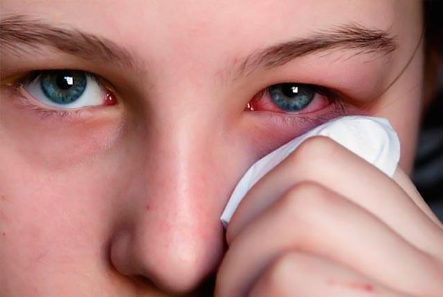 Photo of Βλεφαρίτιδα: Τι την προκαλεί και πώς αντιμετωπίζεται