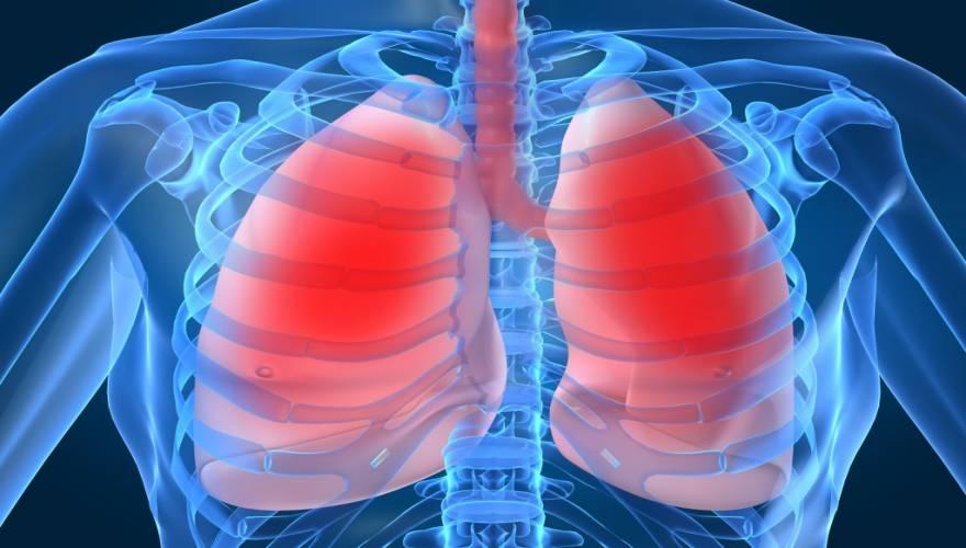 Πνευμονία: Μια σοβαρή και υποεκτιμημένη νόσος