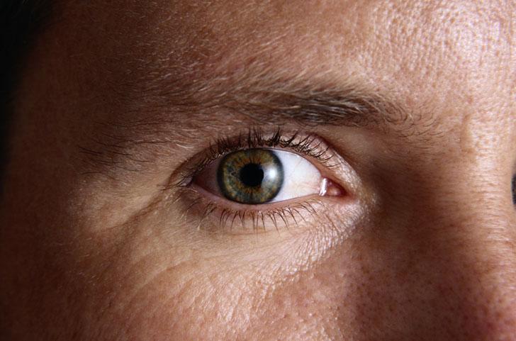 Γλαύκωμα: Νέα θεραπεία προλαμβάνει την απώλεια όρασης