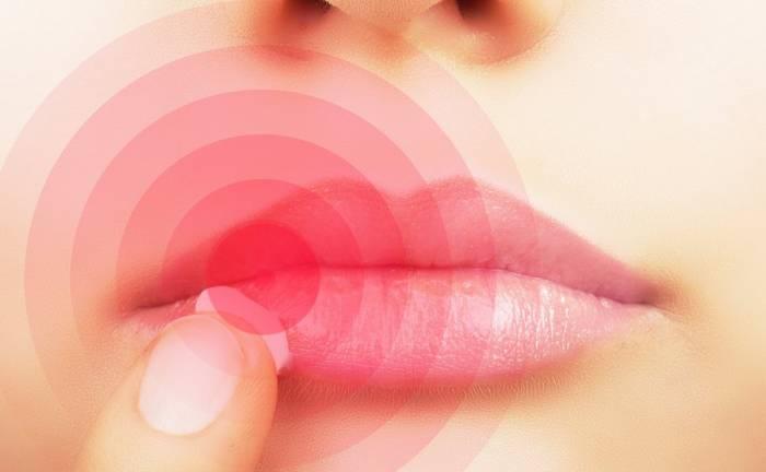Επιχείλιος έρπης: Πώς μεταδίδεται και πώς θα θεραπευτείτε