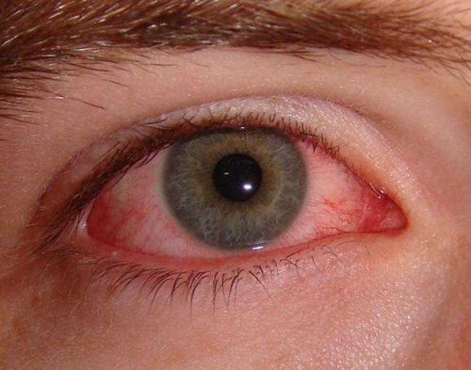 Κόκκινα μάτια: Ποιες οι πιθανές αιτίες;