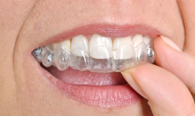Τρίξιμο δοντιών: Οι κίνδυνοι για την υγεία!