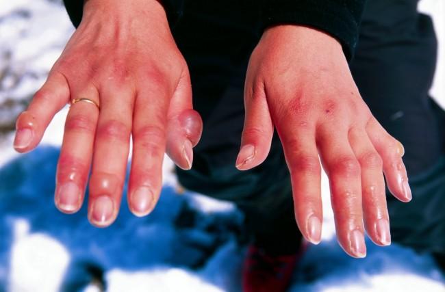 Χιονίστρες στα δάχτυλα: Τι είναι πως αντιμετωπίζονται;