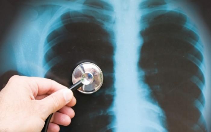 Παγκόσμια Ημέρα Φυματίωσης: Ο εφιάλτης είναι ακόμη εδώ! Στοιχεία σοκ