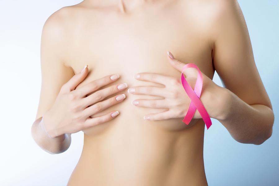 Καρκίνος μαστού και άσκηση: Πότε ωφελεί;