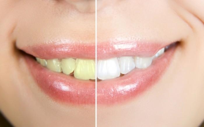 Λευκά δόντια: Με ποιους τρόπους τα αποκτάτε