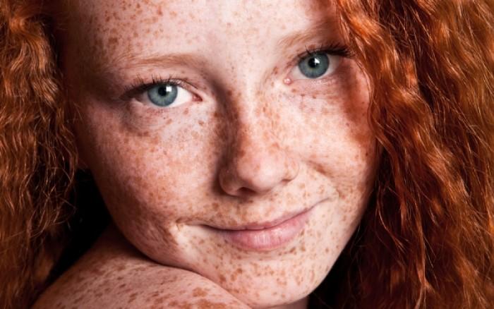 Πανάδες στο πρόσωπο: Πώς να τις αντιμετωπίσετε;