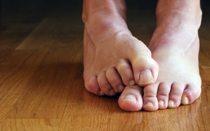 Κακοσμία ποδιών: Tips για να απαλλαγείτε μια και έξω