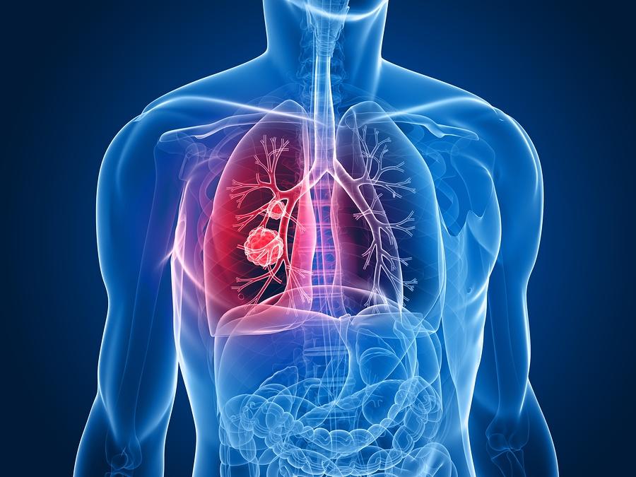 Πράσινο φως της Ε.Ε. για συνδυασμό φαρμάκων για προχωρημένο μη μικροκυτταρικό καρκίνο του πνεύμονα με μετάλλαξη!