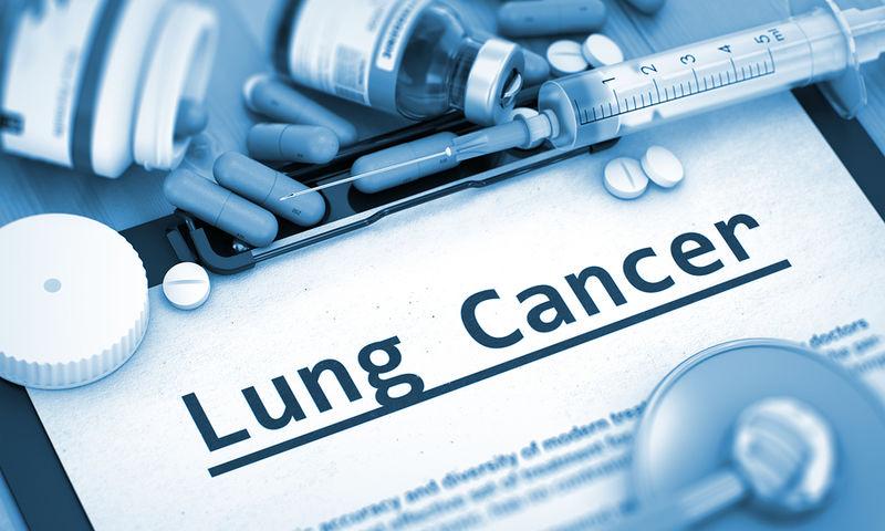 Καρκίνος πνεύμονα: Ποιες θεραπείες αυξάνουν το χρόνο επιβίωσης