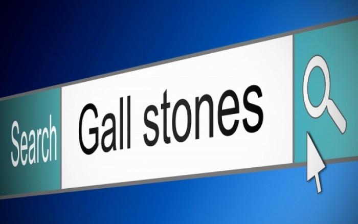 Πέτρες στην χολή: Πώς θα μειώσετε τον κίνδυνο;