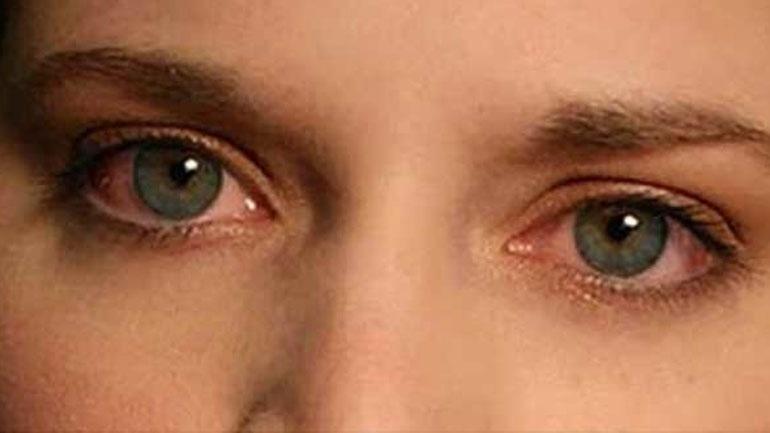 Μάτια που κοκκινίζουν: Σε τι οφείλεται & πώς αντιμετωπίζεται;