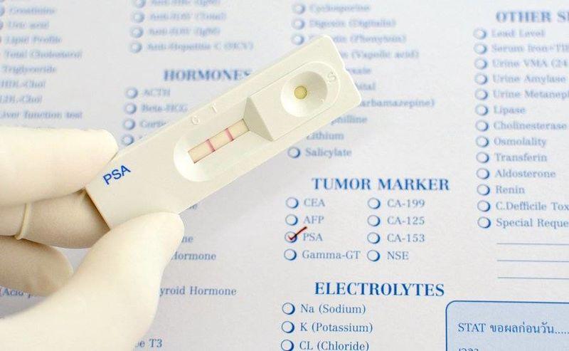 Καρκίνος προστάτη: Ποιοι είναι οι παράγοντες κινδύνου;