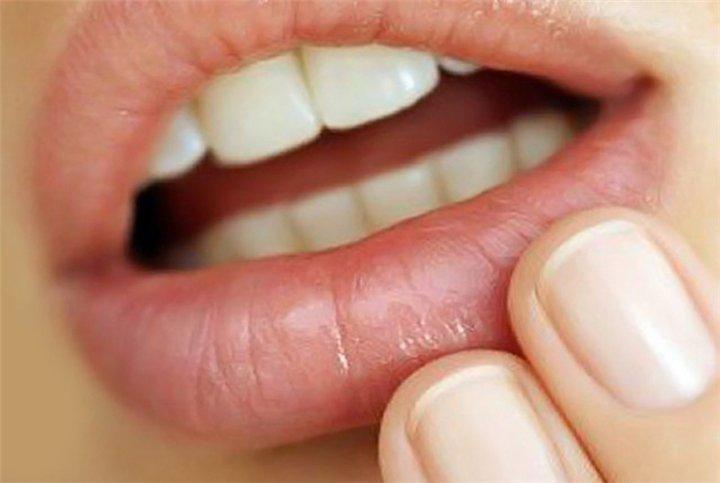Άφθες στο στόμα: Τι επιτρέπεται, τι απαγορεύεται και για πόσο