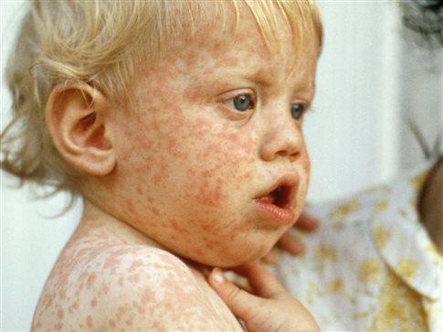 Ο πρώτος θάνατος από ιλαρά σε παιδί 11 μηνών! Συναγερμός στο ΚΕΕΛΠΝΟ