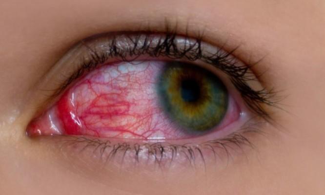 """Ραγοειδίτιδα: Η άγνωστη πάθηση που """"απειλεί"""" την όραση!"""