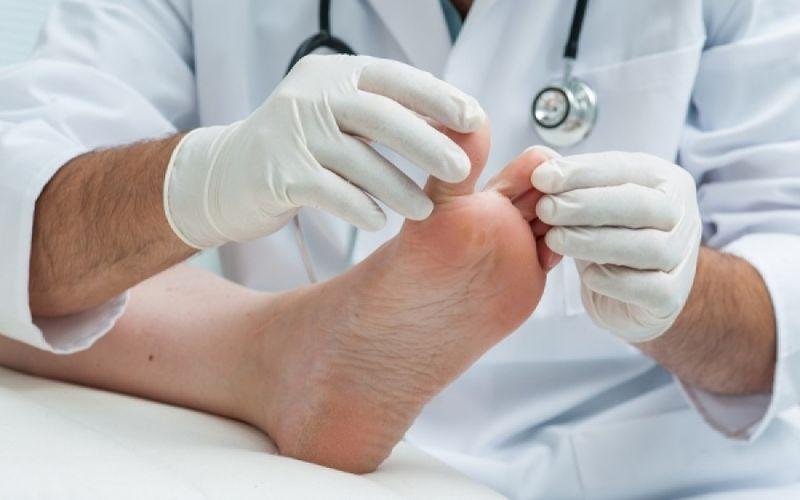 Μύκητες στα νύχια χεριών και ποδιών: Εγγυημένοι τρόποι αντιμετώπισης από τους επιστήμονες της Mayo Clinic