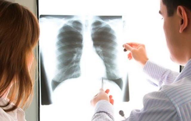 Πνευμονικό οίδημα: Τα «ύπουλα» συμπτώματα που δεν πρέπει να αγνοήσετε