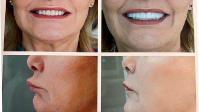 Photo of Αισθητική Οδοντιατρική: Πως «μεταμορφώνει» το πρόσωπο