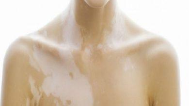 Photo of Λεύκη: Πότε και γιατί ξεβάφει το δέρμα;