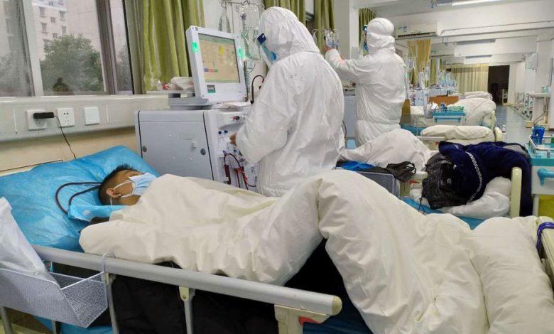 Κορονοϊός: Τι είναι το covid toe που εμφανίζουν κάποιοι ασθενείς;